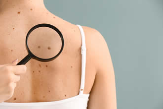 When To See a Dermatologist for a Mole