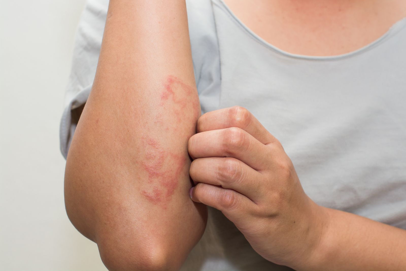 itchy rash all over body causes